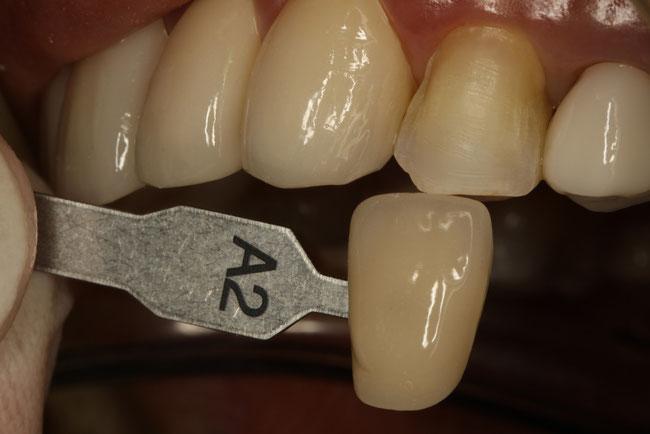 変色歯をオールセラミックで治療
