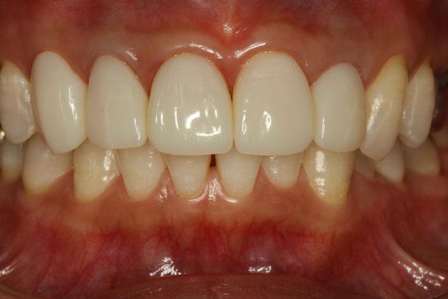 仮歯の修正