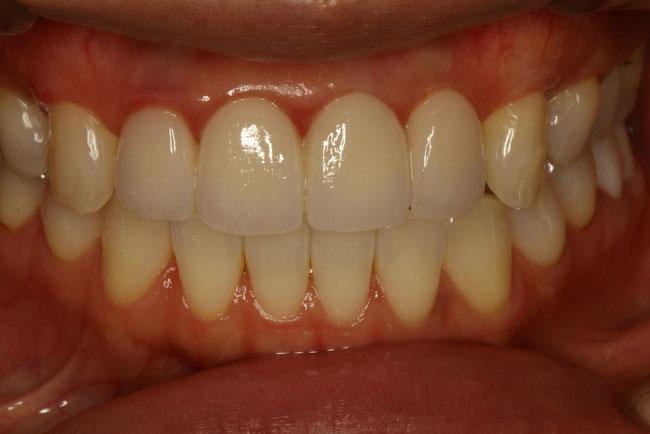 歯茎が下がってしまったケース