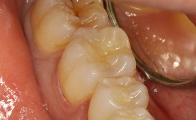 白い歯を入れました