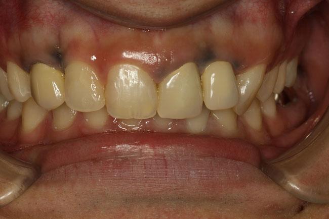 歯茎が黒い原因が金属の粉のケース