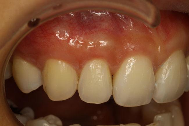 歯茎の形と審美歯科