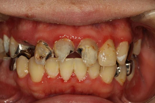 歯がボロボロ