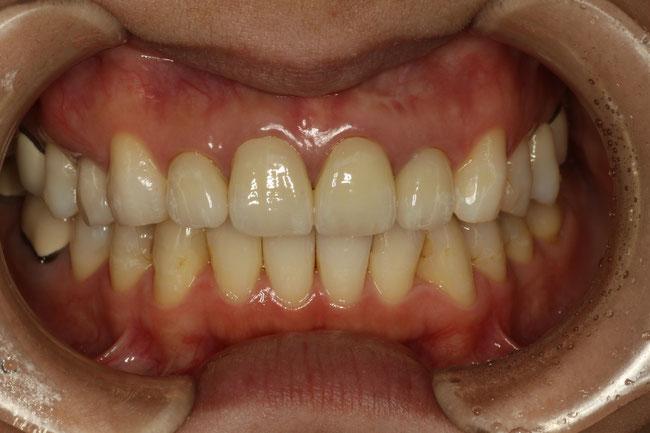 セラミックの差し歯の歯茎が下がってしまう事があります.