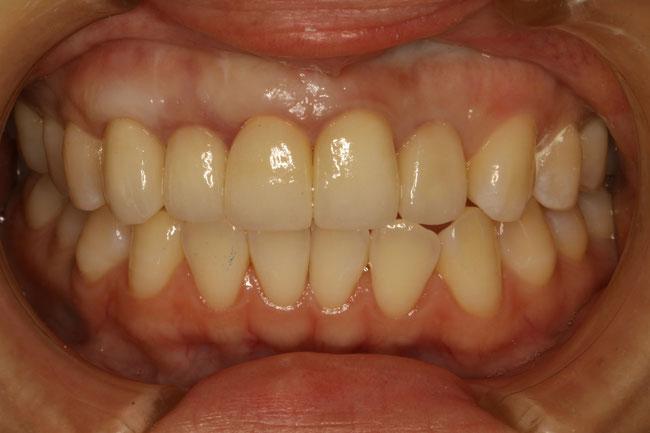 歯ぐきの再生治療後に審美歯科を行った状態