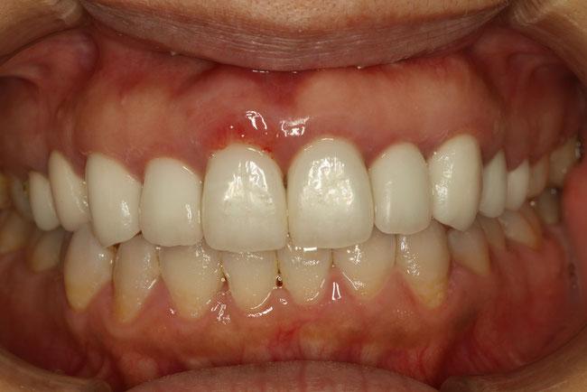 歯茎の再生後