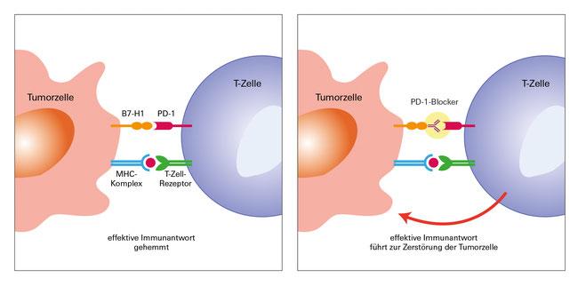 So wirkt die PD-1-Blockade prinzipiell. Bei Patienten mit fortgeschrittenem Melanom ist der Therapieerfolg allerdings nicht immer gleich gut.  (Foto: Uniklinikum Würzburg)