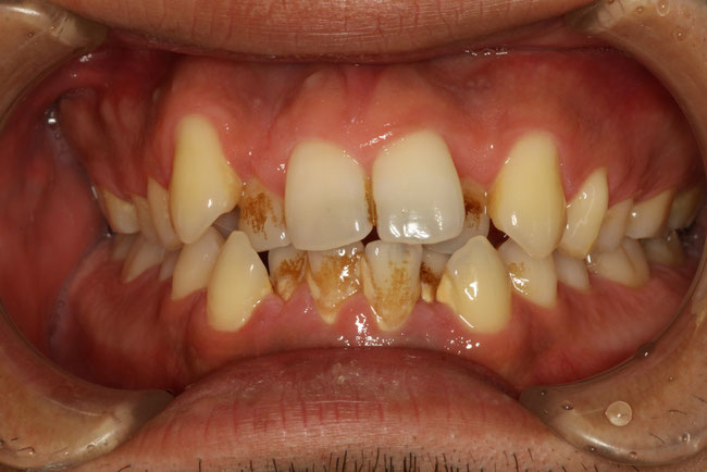 歯並びと歯の清掃性