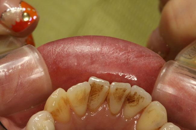歯の表面の着色