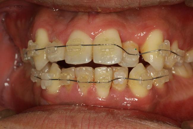 前歯の部分矯正治療