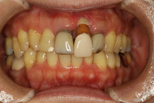 歯茎の壊死