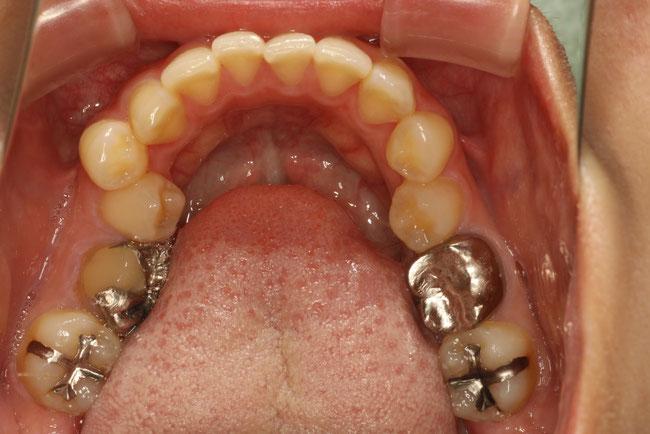 舌の歯が内側に傾いている