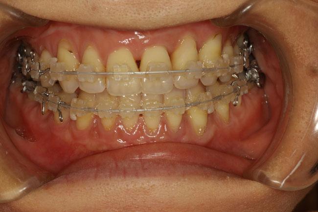 歯を抜かずに骨を広げて矯正治療