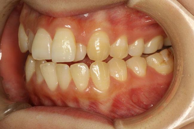 前歯の凸凹