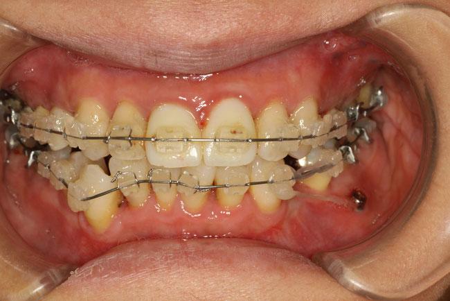 仮歯を入れた状態で矯正治療