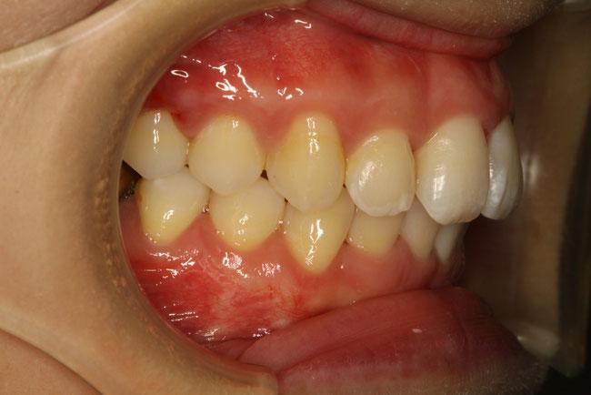 出っ歯のモニター矯正治療