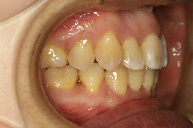前歯の凸凹 矯正治療後
