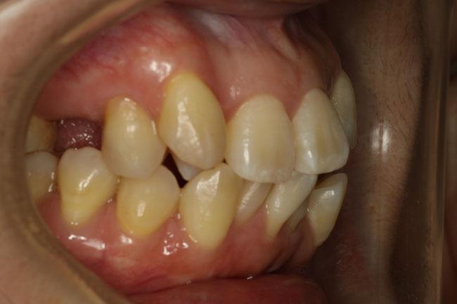 前歯の凹凸治療前