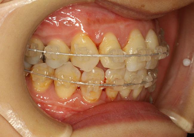 歯列矯正中のクリーニング