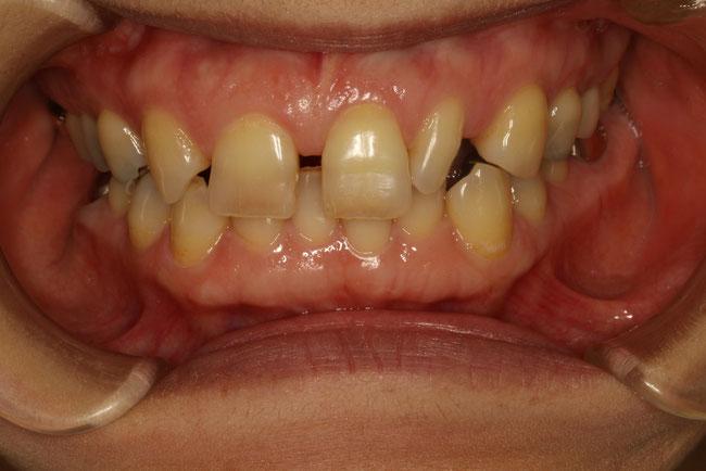 歯列矯正モニター