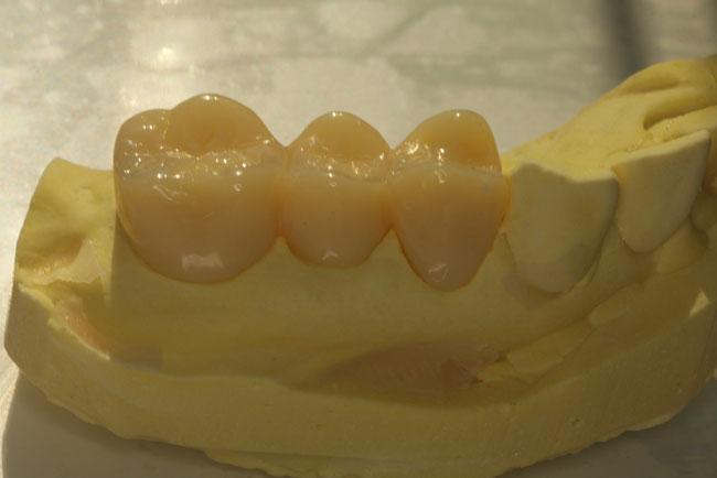 矯正治療中に使用する仮歯