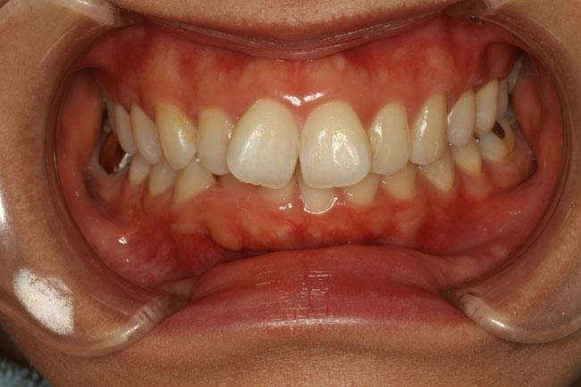 出っ歯のケース