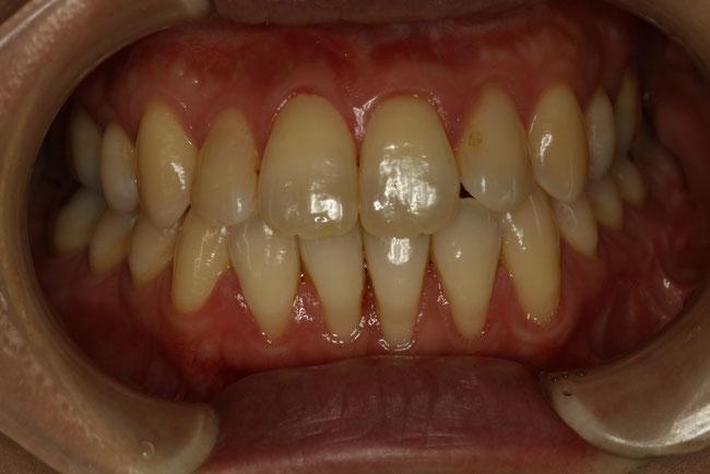反対咬合の矯正治療後の歯茎の退縮