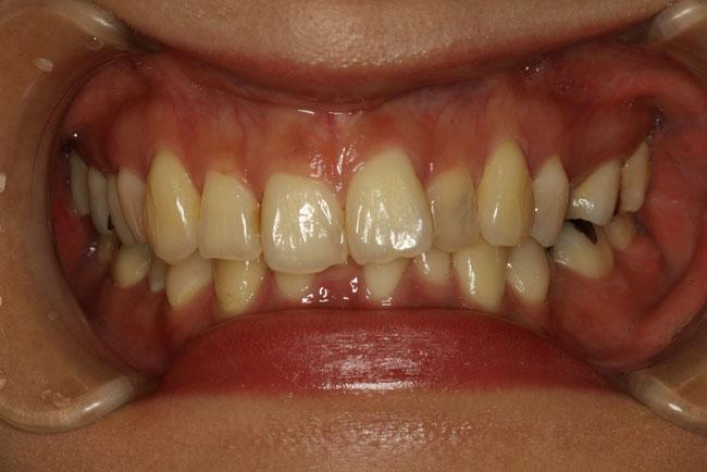 歯並びと噛み合わせ