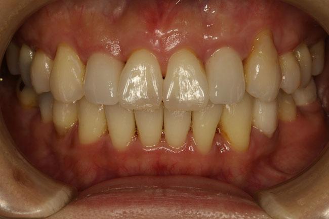 矯正治療と審美歯科治療