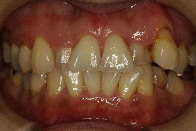 矯正治療と審美歯科