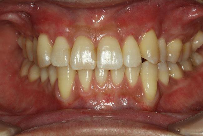 矯正と歯茎の退縮