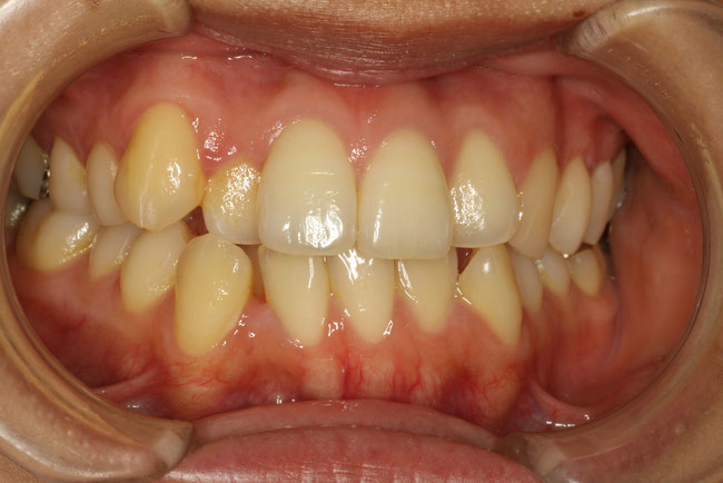 前歯の歯並びの治療