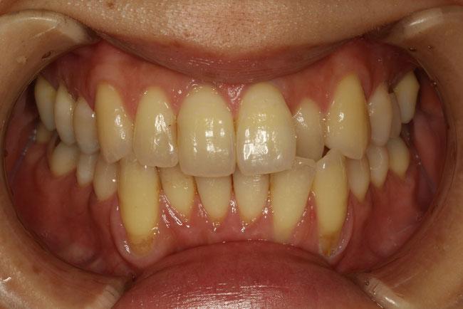 歯茎が下がってしまったときの矯正治療