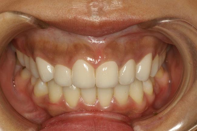 歯並び治療後