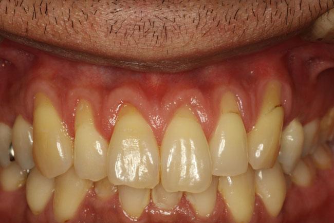 歯茎の下がってしまっている方の矯正治療
