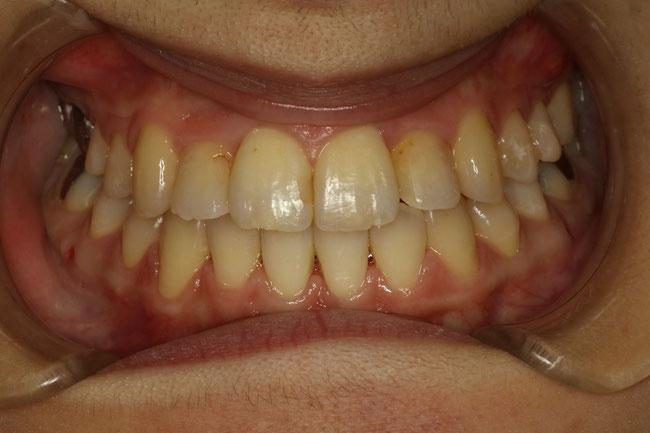 反対咬合の矯正治療