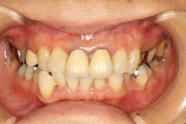 前歯の差し歯の形が気になる方の治療