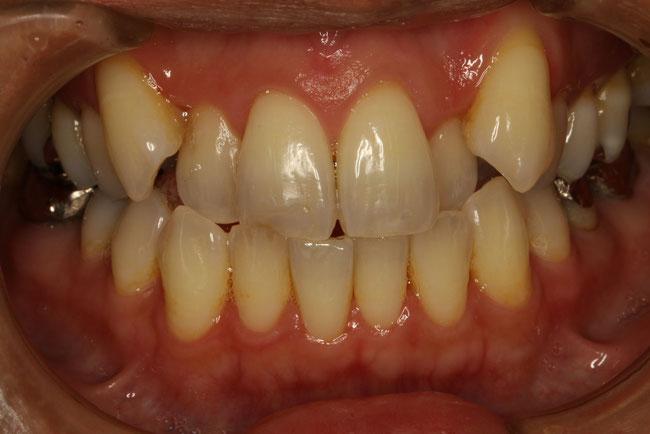 八重歯を矯正モニターで