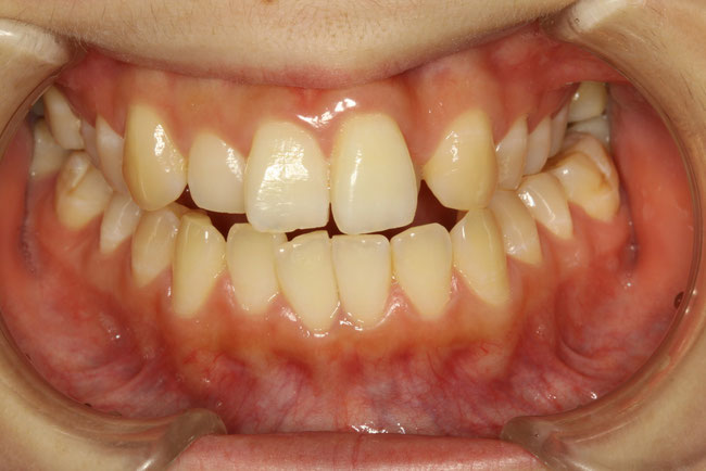 上あごが小さくて歯が並びきらない方
