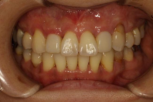 八重歯の治療