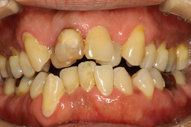 歯並びを審美歯科で治療 治療前