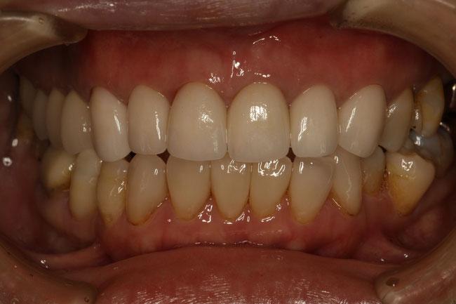 上の前歯6本のオールセラミック治療例