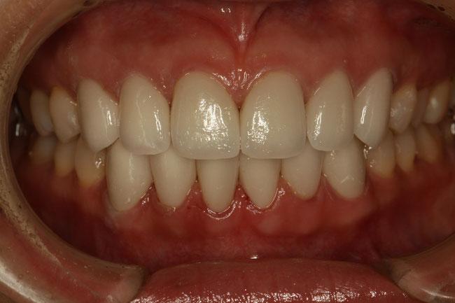 オールセラミックで前歯を全部治した場合