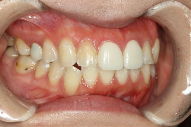 仮歯で大きさの調整