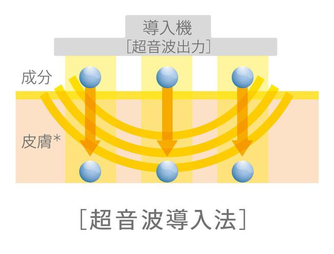 超音波導入法