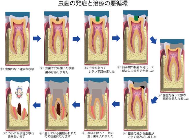 虫歯治療の再発・悪循環