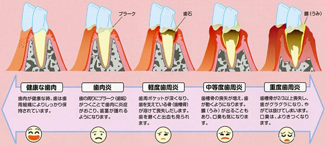 歯周病糖尿病整体