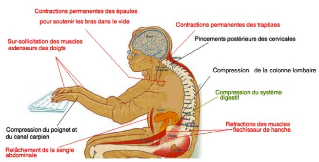 mauvaise posture ordinateur ostéopathe arènes toulouse