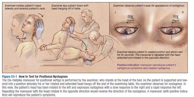 Maniobra para testar el Síndrome Posicional Paroxístico Benigno.