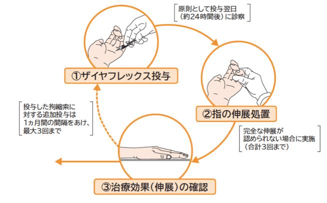 デュピュイトラン拘縮、酵素注射療法、ザイヤフレックス、國府幸洋、千葉県、柏市、名戸ヶ谷病院